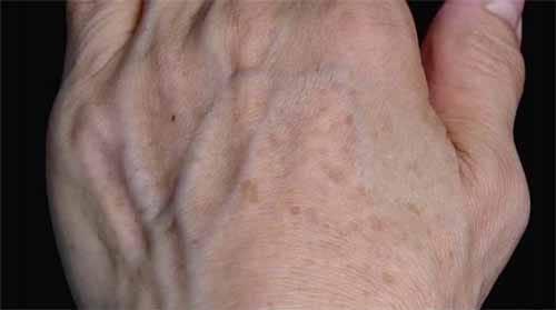 手の浮き血管を予防する方法:教えてもらう前と後【2019/11/19】